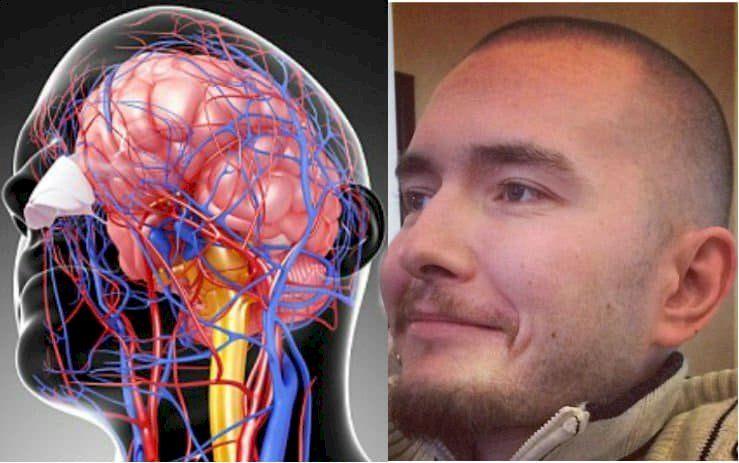 Возможна ли пересадка головы? История исследований